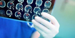 Надання медичної допомоги при інсульті: маршрут і безоплатні послуги для пацієнта